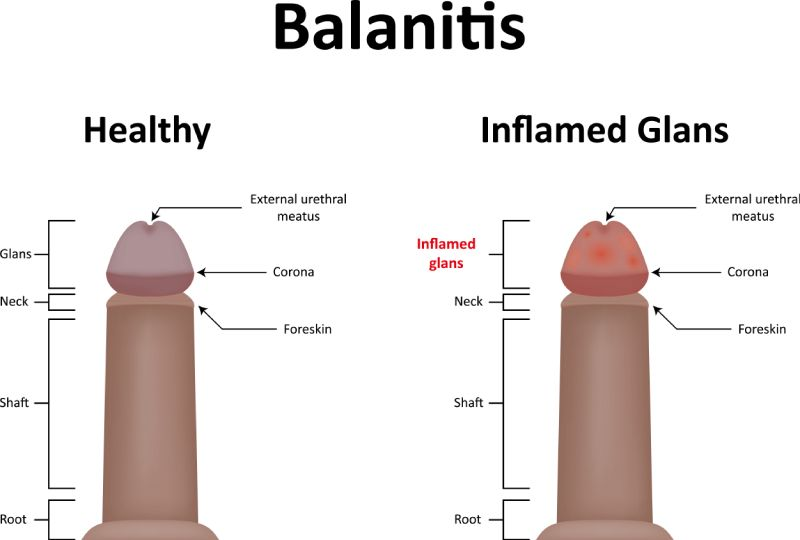 Balanitis Overview